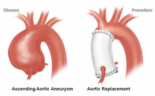 Ascending Aortic Aneurysms