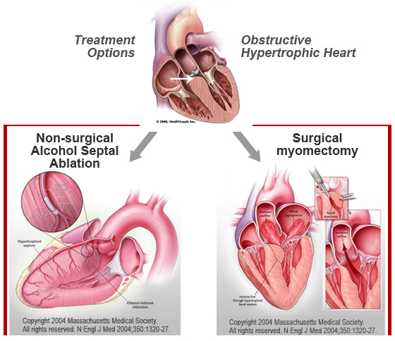 Hypertrophic obstructive cardiomyopathy