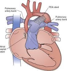 Heart Stent Surgery