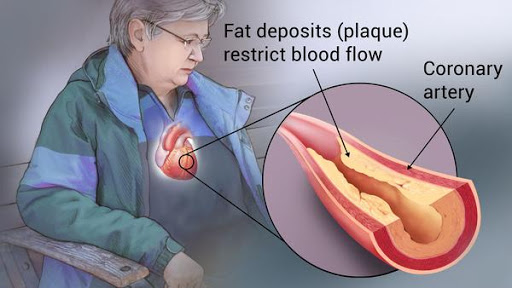 Coronary Artery Disease Treatment in India