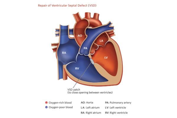Acyanotic Heart Disease Treatment