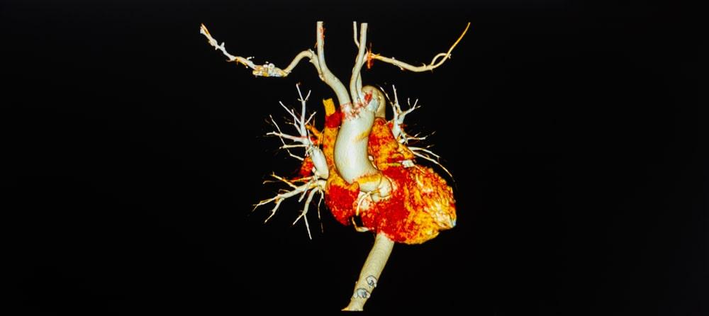 Coronary Angiography in Gurugram