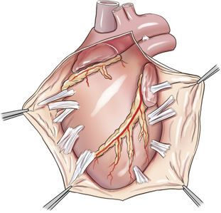 Pericardiectomy Surgery in Delhi, India