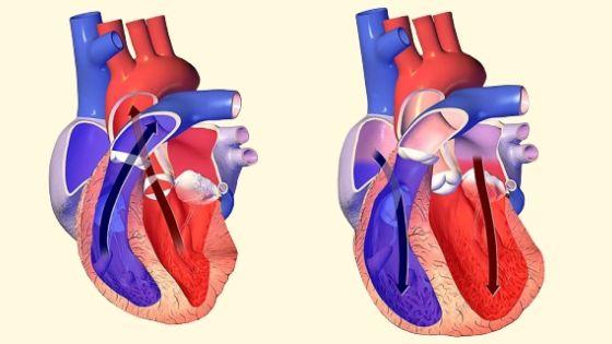 Heart Failure Treatment in Delhi, India