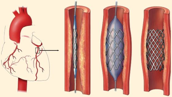 Percutaneous Coronary Intervention in Delhi, India
