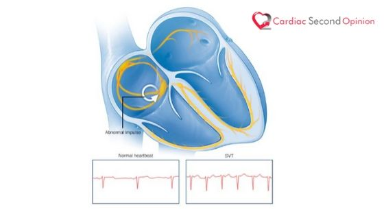 Ventricular Tachycardia & Supraventricular Tachycardia Treatment in India
