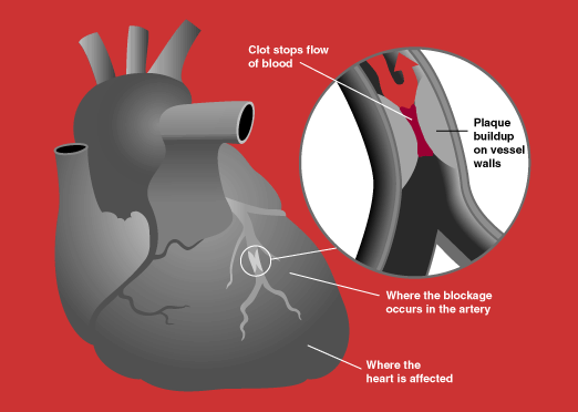 Acute-Coronary-Syndrome.png